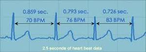 interbeat intervals